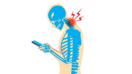 Text Neck DAMAGING OUR SPINES